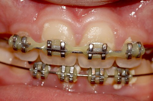 How To Get Braces For Free - The Facts