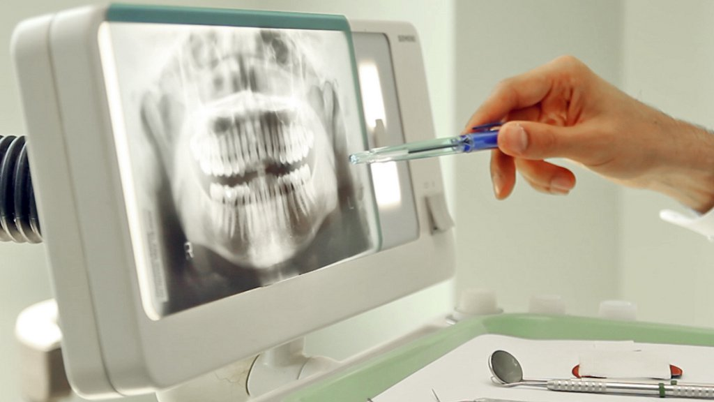 dental x-ray to find oral cancer